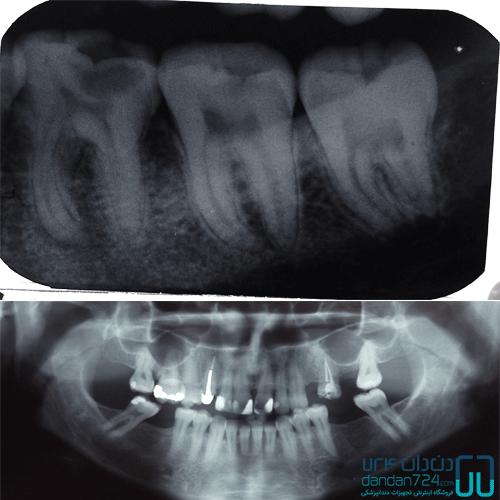 رادیوگرافی تک دندان