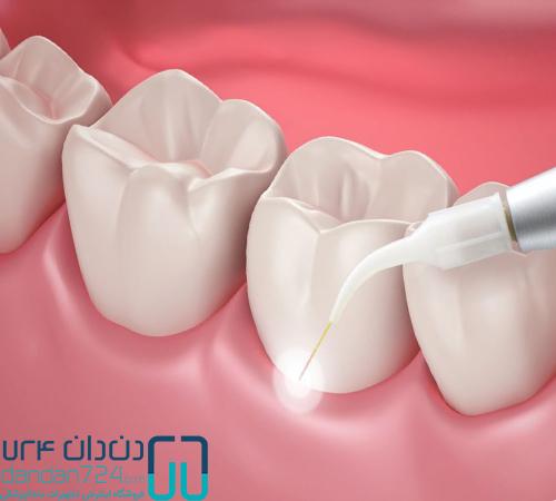 تجهیزات دندانپزشکی فلپ ترمیم دندانی دندان724 dandan724