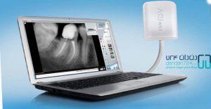 تجهیزات دندانپزشکی سنسور rvgدندان724 DANDAN724