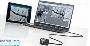 فروشگاه اینترنتی تجهیزات دندانپزشکی سنسور rvg دندان724 dandan724