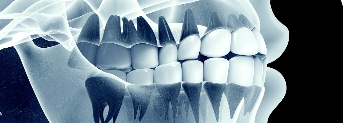 رادیوگرافی دندانپزشکی | فروشگاه اینترنتی تجهیزات دندانپزشکی | دندان 724 | dandan724